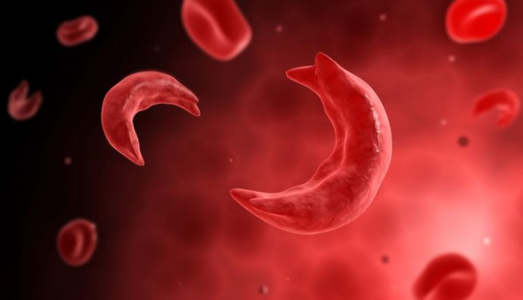 sickle cellanaemia